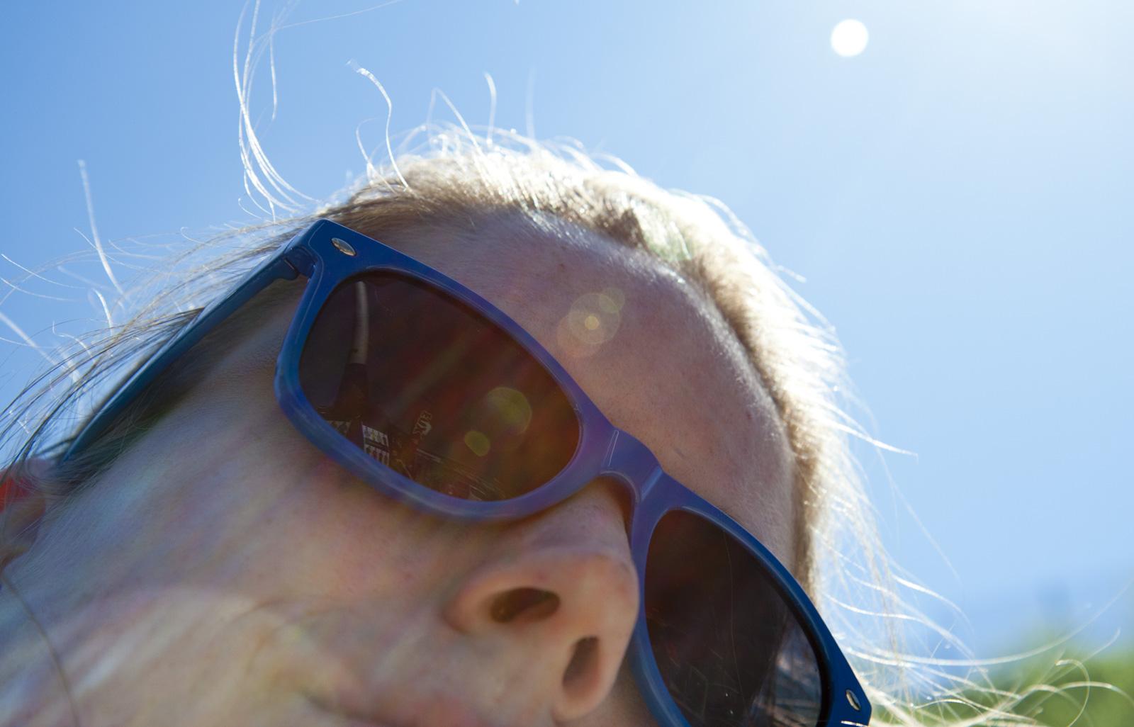 Now I'm hipster: Neue Sonnenbrille – farblich passend zum Sonnenbrand.